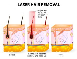Laser Hair Removal Services for People in Lexington, Richmond & London, Kentucky (KY)