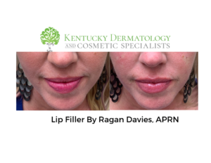 Lip filler: Everything You Need To Know 2019!